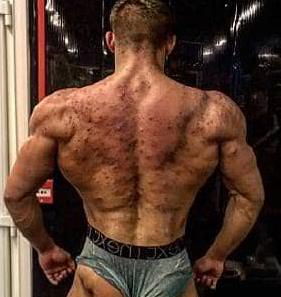 acne bodybuilder